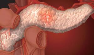 Дисфункция поджелудочной железы