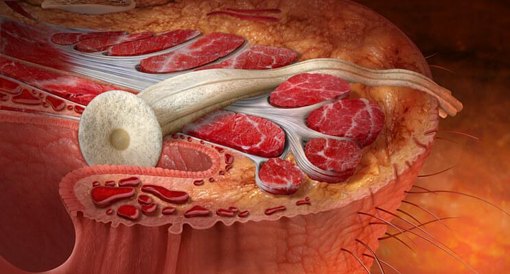 Гнойный парапроктит или свищ заднего прохода. Причины патологии