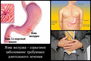 Препараты от язвы желудка и двенадцатиперстной кишки