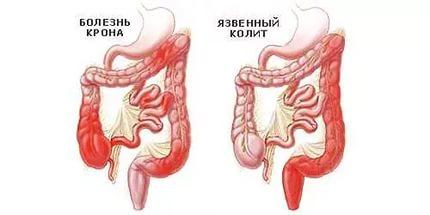 Свищ прямой кишки: причины, симптомы, как лечить свищ прямой кишки