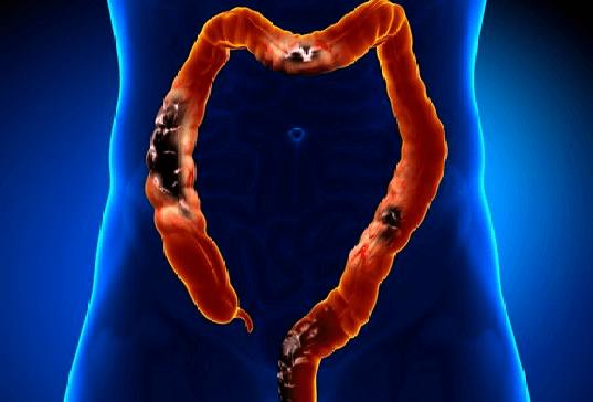 Дивертикулез сигмовидной кишки: лечение, причины, симптомы, последствия