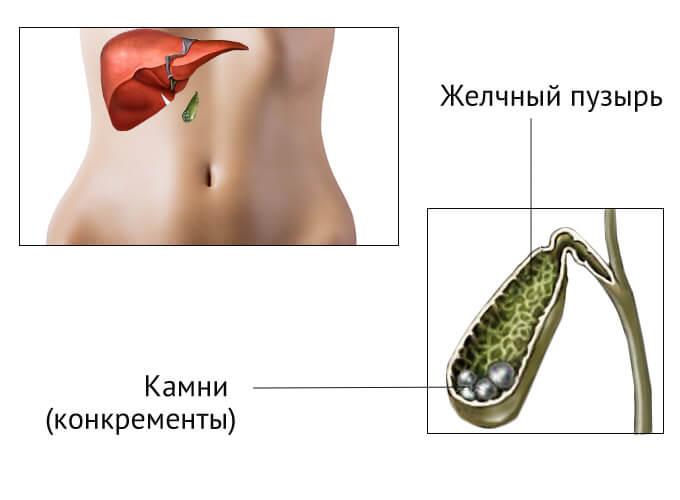 Дробление камней в желчном пузыре как метод лечения ЖКБ