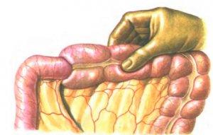 Закупорка кишечника