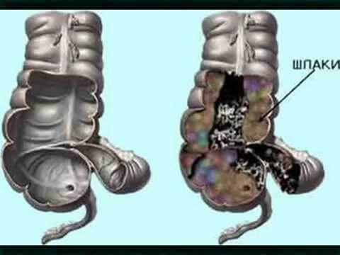 Каким способом очистить кишечник от каловых камней: отруби, диета или гидроколонотерапия?
