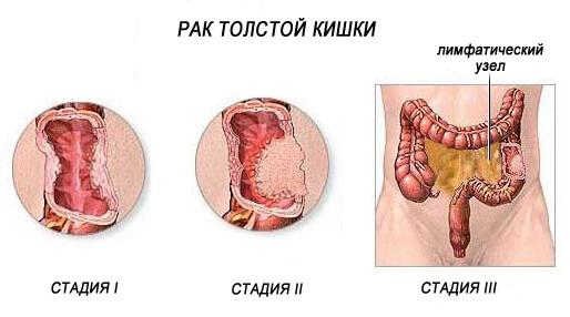 Опухоль толстой кишки: симптомы, которые нельзя игнорировать