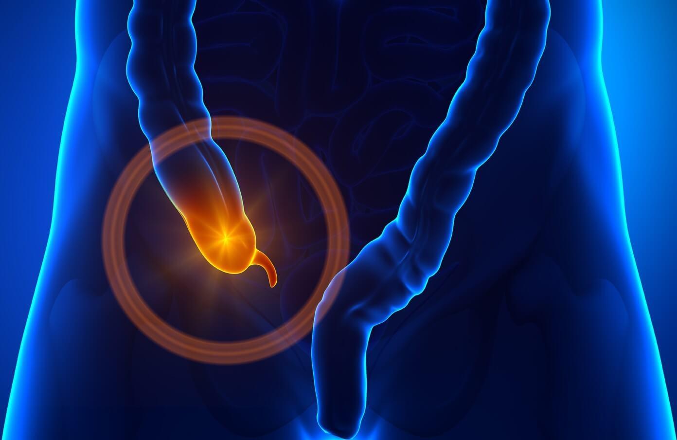 Как проверить аппендицит дома: достоверные симптомы