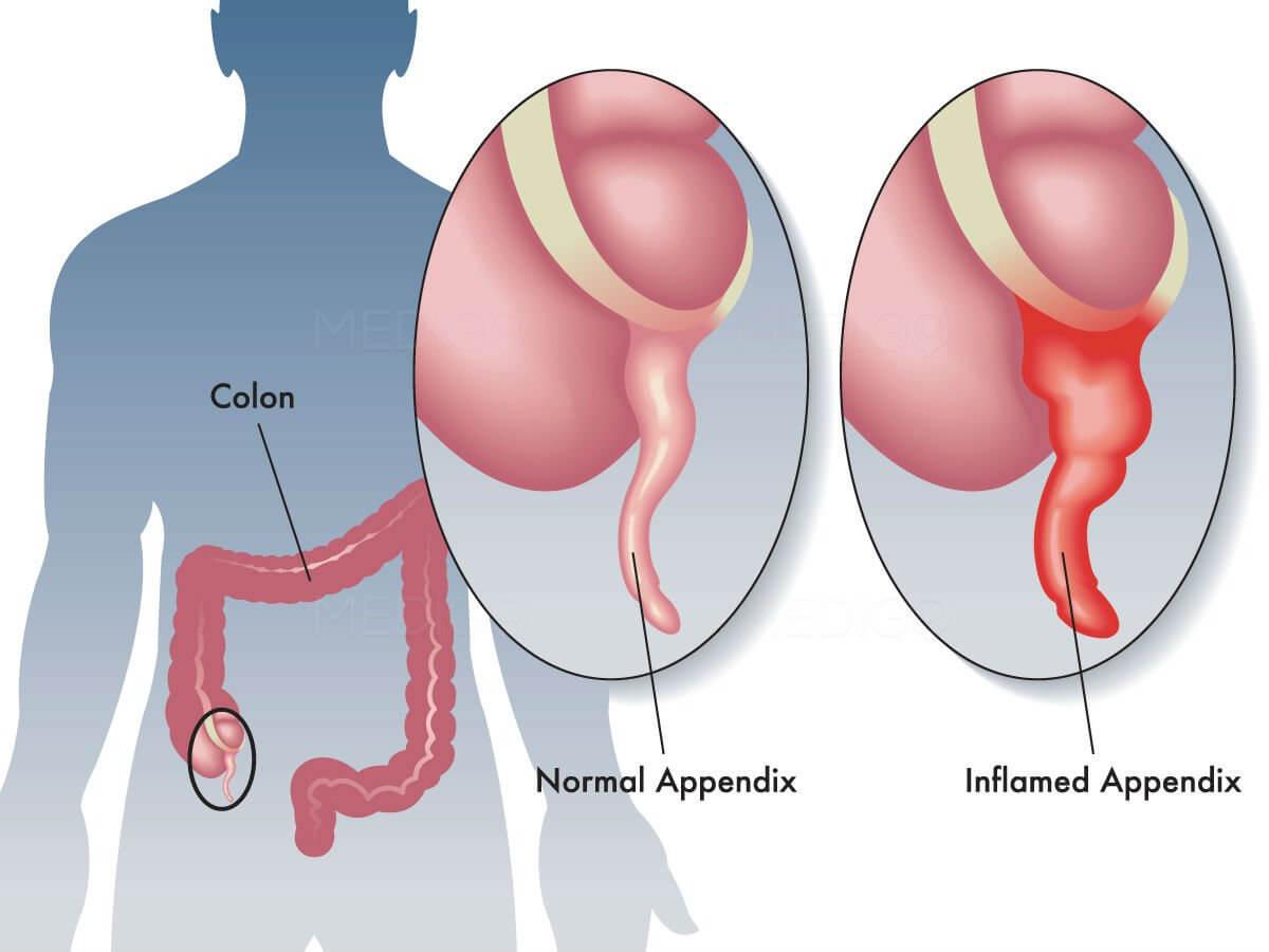 Гнойный аппендицит: что это такое, причины и симптомы