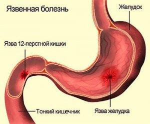 Язва желудка