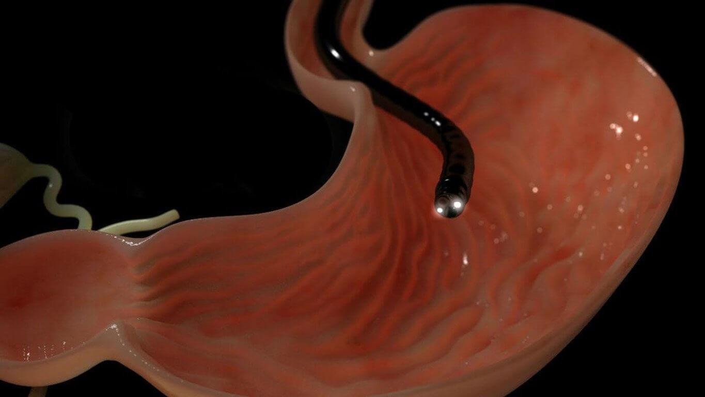 Что такое саркома желудка, какие методы лечения заболевания
