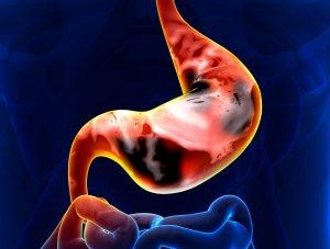 Что такое рак желудка
