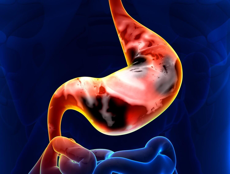 Что такое рак желудка, особенности протекания заболевания, лечение