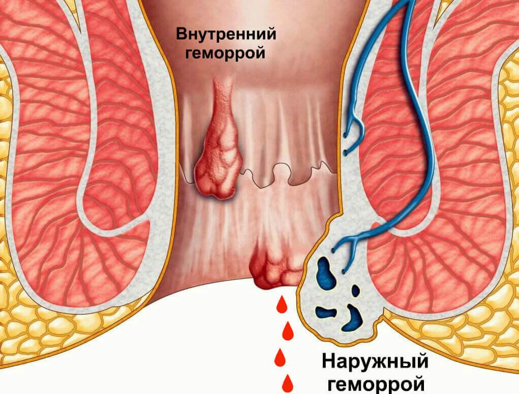 Идет кровь из анального отверстия: почему возникает патология, симптомы и признаки, диагностика и лечение