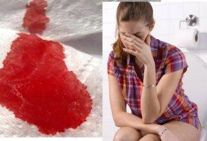 кровь из анального отверстия