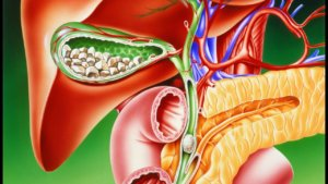 острый флегмонозный калькулезный холецистит