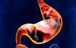 Как определить основные признаки желудочного кровотечения