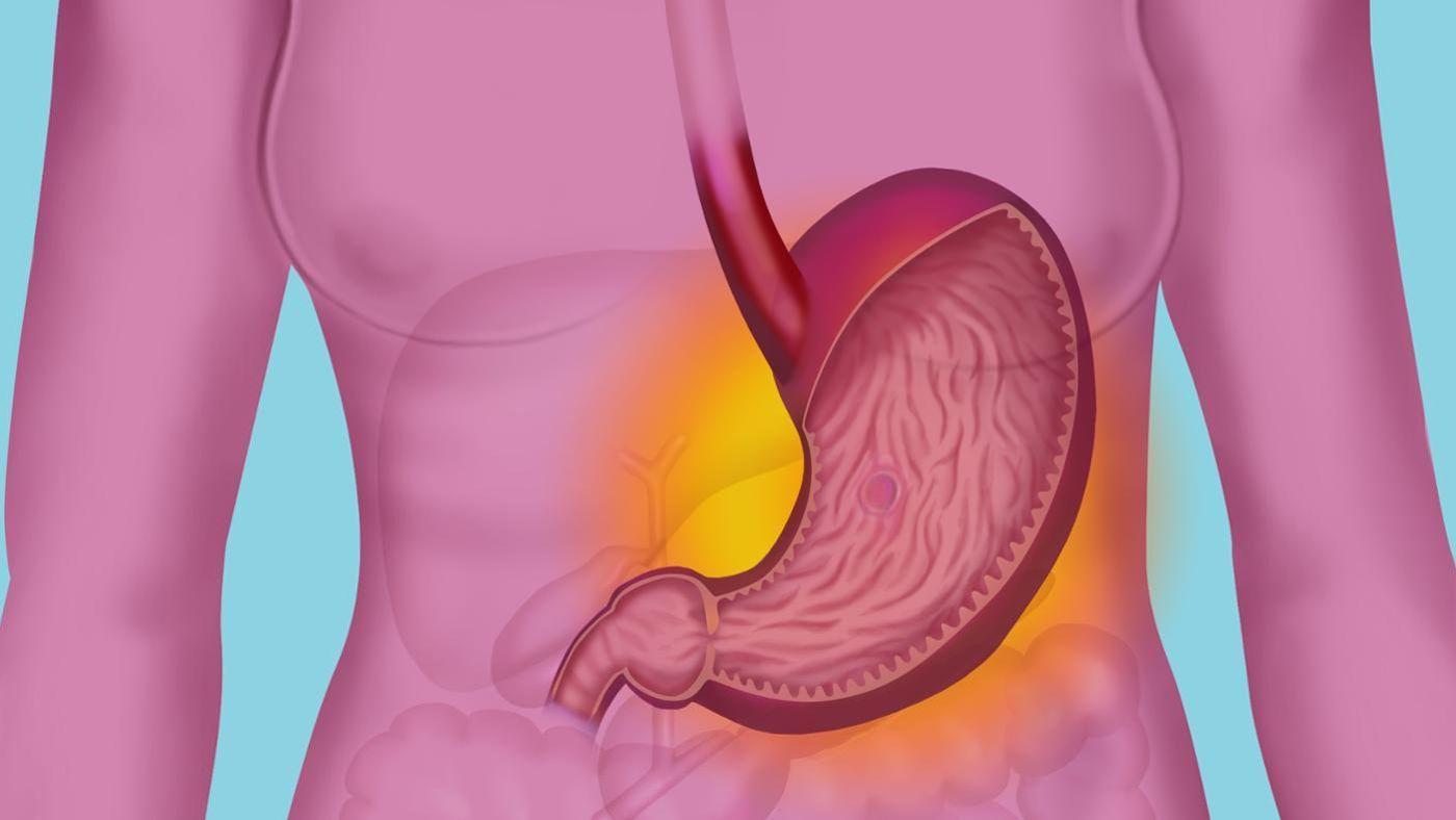 Что помогает от боли в желудке: эффективные средства