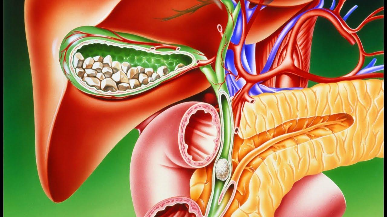 Как выявить камни в поджелудочной железе: симптомы, сигнализирующие об их наличии
