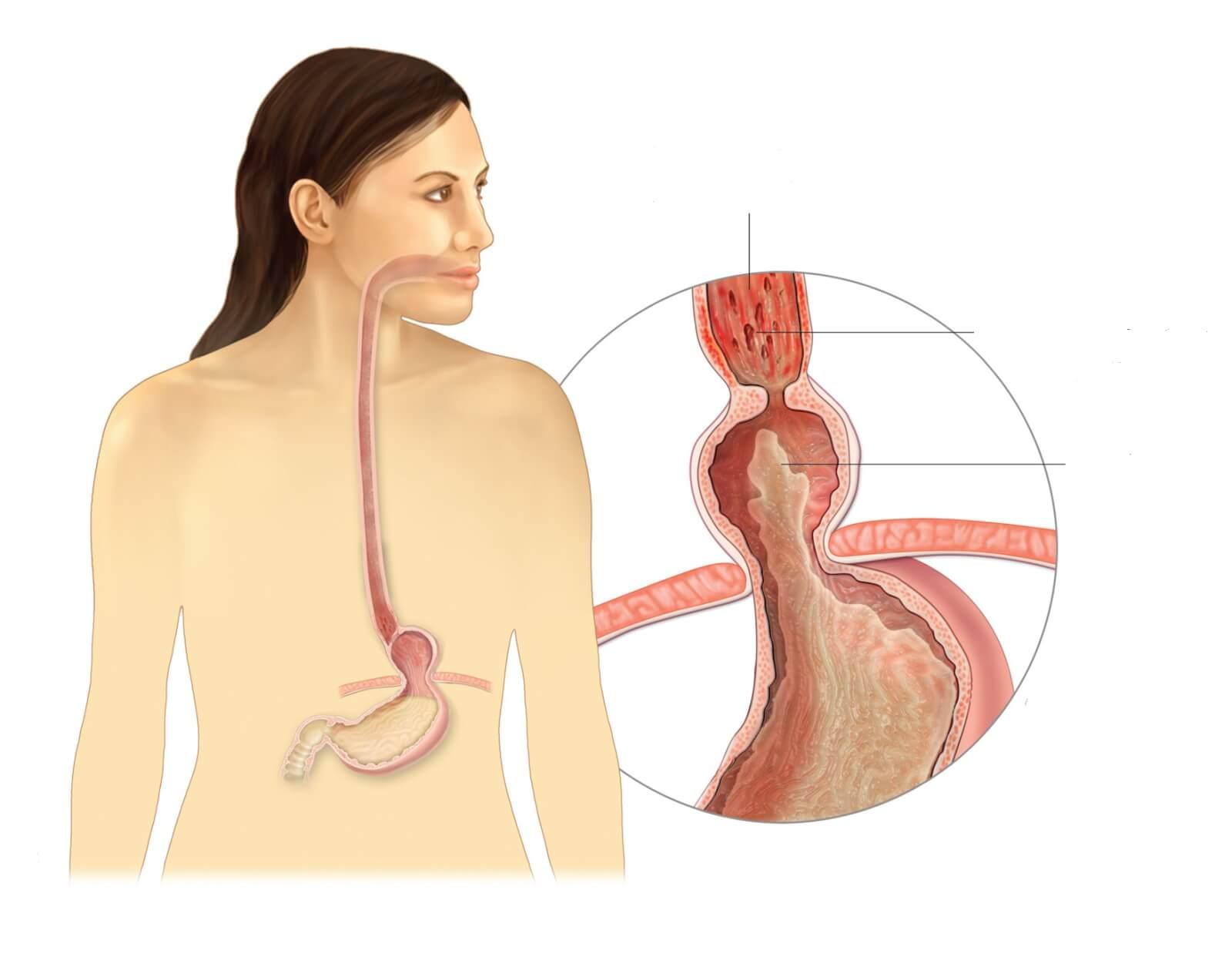 Грыжа желудка: лечение, симптомы и возможные осложнения