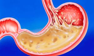 Продукты повышающие кислотность желудка