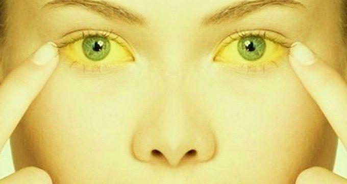Заразна ли желтуха, какие нужно соблюдать профилактические меры