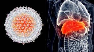 Причины и факторы риска рака печени
