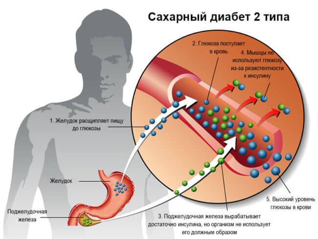 Как развивается диабет
