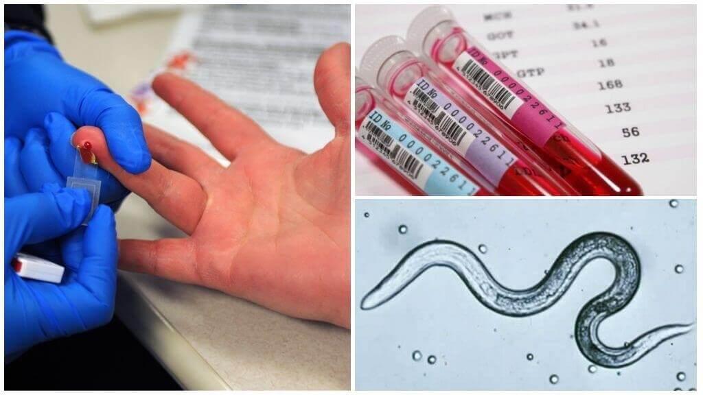 Какие анализы сдать на паразитов, типы исследований